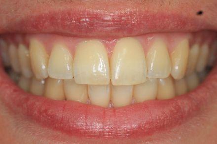 inman-aligner Zahnspangen Nachher