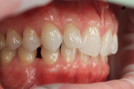Zahnspangen für Erwachsene in Berlin - Vorher